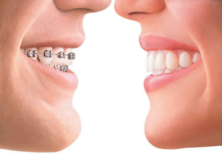 Dentista Alcala Henares 1 Clinica Dental Ortodoncias Invisibles Brackets