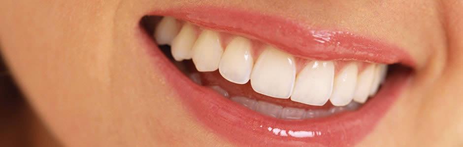 Dentista Alcala Henares |Clinica Dental Estetica Blanqueamientos Dientes Carillas Porcelana Eliminacion Manchas Malformaciones Dentales