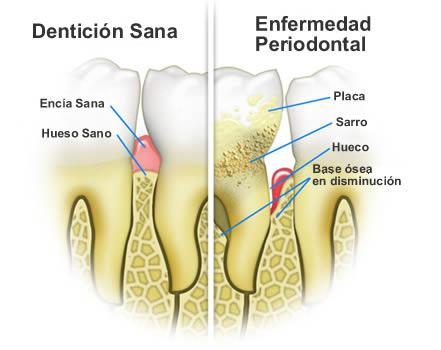 enfermedades periodontales clínicas dentalcare madrid
