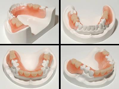 Dentista Alcala Henares | Clinica Dental Protesis Dentales Fijas Combinadas Implantes