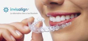 Ortodoncista Invisalign Alcala Henares | Clinica Dental La Garena