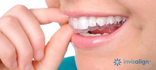 Corrector Dental Transparentes Invisaling | Clinica La Garena Alcala de Henares